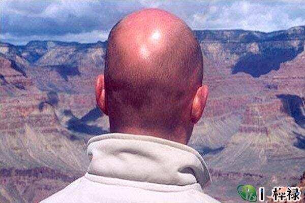 越来头发越少的八字特点