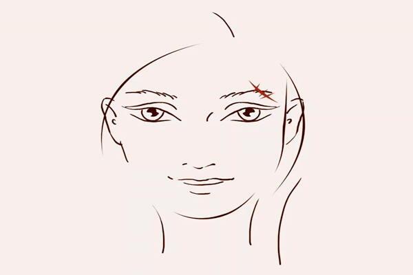 眉毛有疤代表什么  第1张