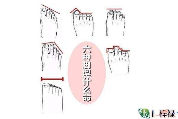 六种脚型什么命
