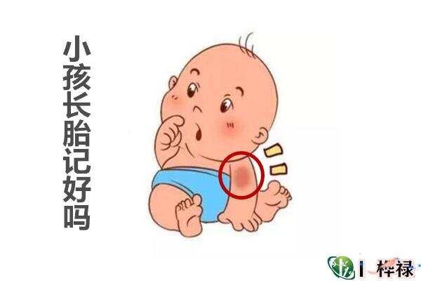 胎记的位置与命运详解,小孩长胎记好吗  第1张