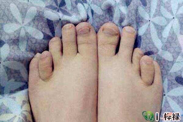 从脚趾长度看命运解析