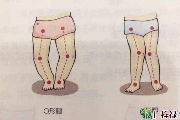 O型腿的男性命好吗