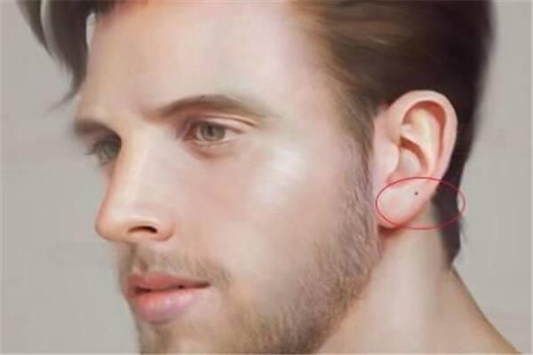 男人耳朵长痣好吗