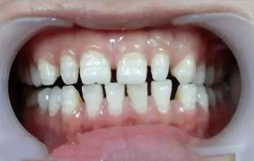 男人牙缝大命好吗